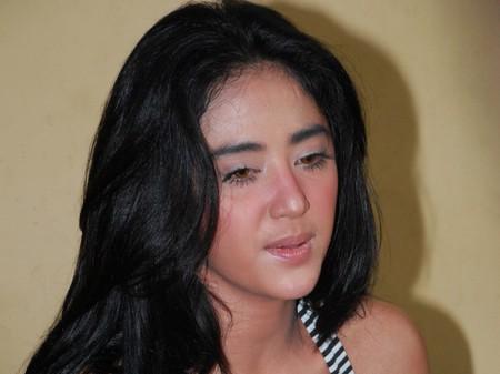 Dewi Persik mengaku telah menjalani operasi keperawanan
